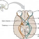 1204_Optic_Nerve_vs_Optic_Tract