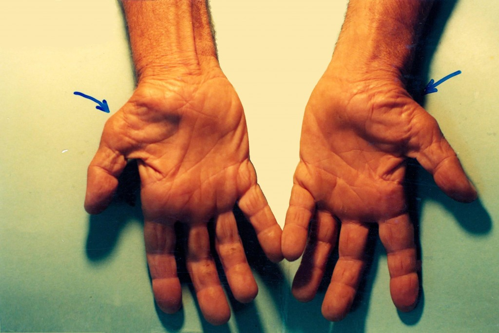 Untreated_Carpal_Tunnel_Syndrome