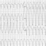 RVOT_Tachycardia