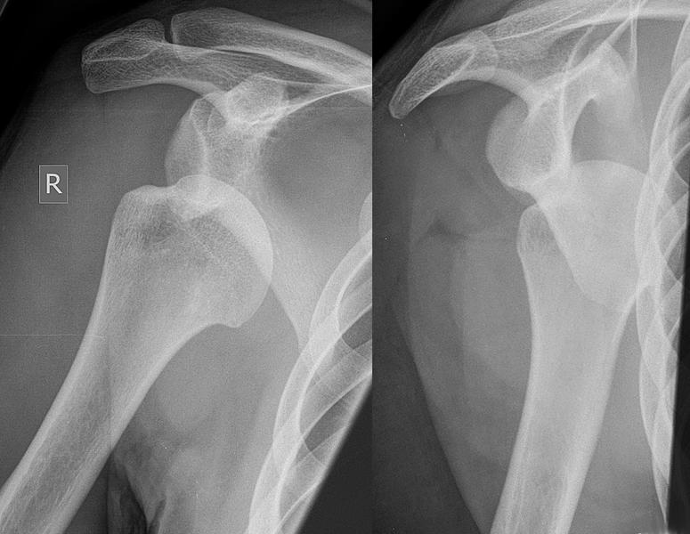 anterior-shoulder-dislocation - FRCEM Success