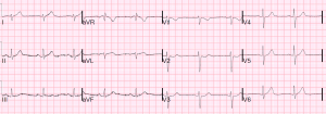 Initial-ECG-TW-lead-I-down-up-V2-STD-V3