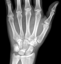 First-Metacarpal-Fracture-Thumb